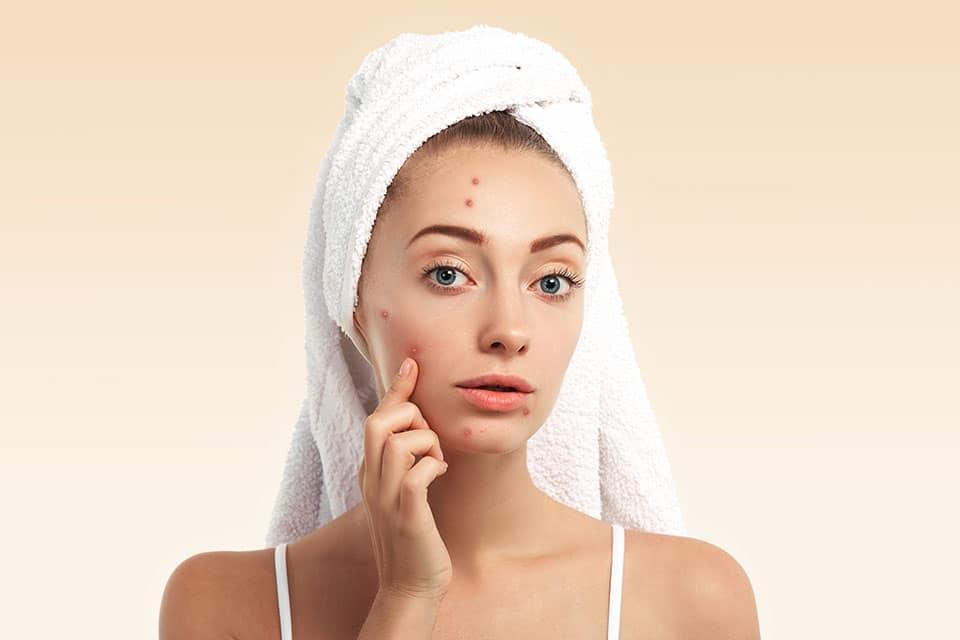 Naturopathie-Problème de peau, acné